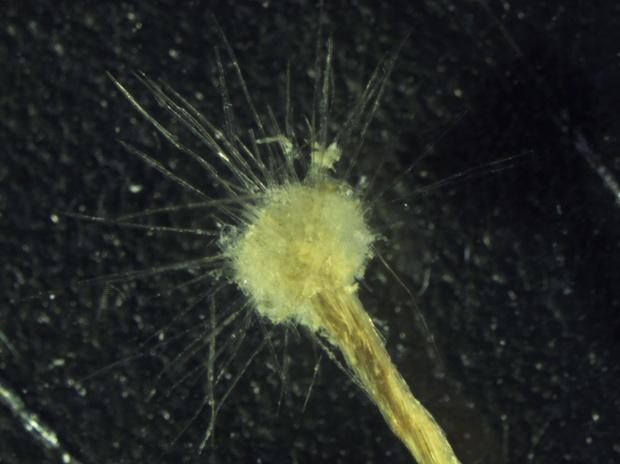 Амебоидный протист Spiculosiphon Oceana — одноклеточный организм, отличающийся гигантскими среди сородичей размерами.